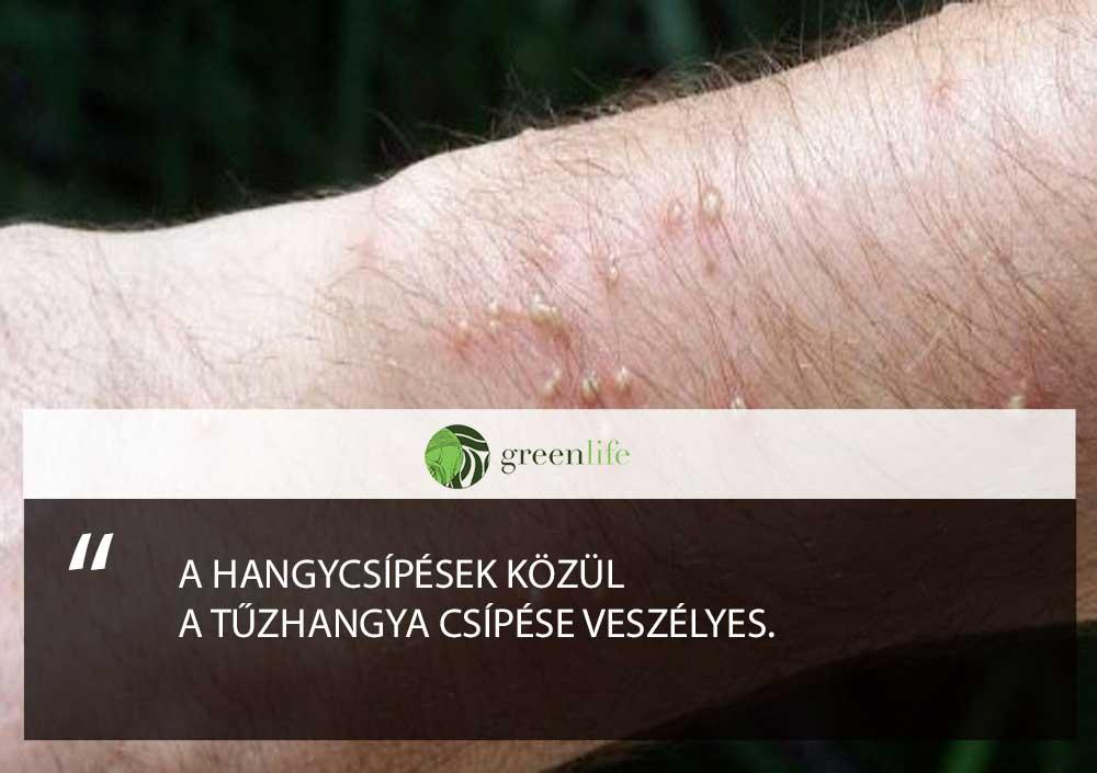tuzhangya-csipes-greenlife.hu